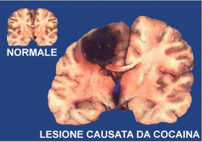 cervello-cocaina